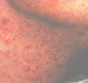 What is Folliculitis?