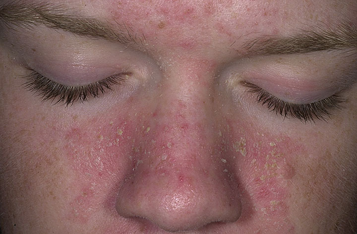 Skincare Tips to Help Seborrheic Dermatitis
