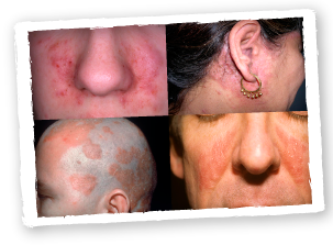 How To Treat Seborrheic Dermatitis